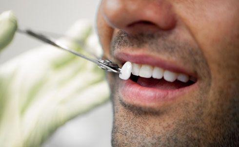 Реставрация зубов - искусство в стоматологии