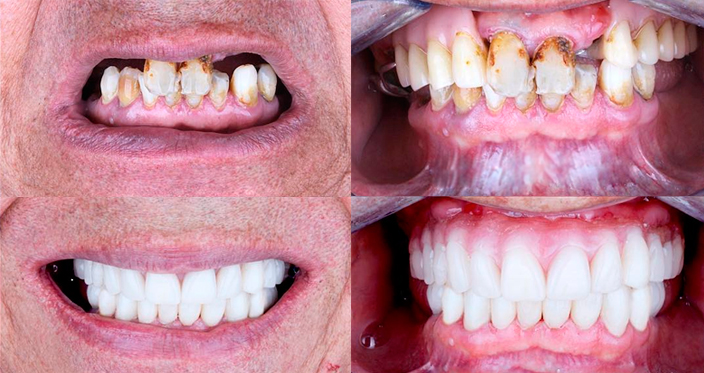 Протезирование при отсутствии всех зубов