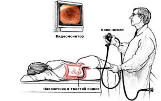 Почему в медицине часто используются видеоколоноскопы?